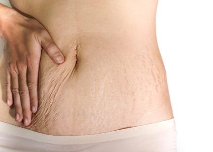 Schwangerschaftsstreifen, Narben, Akne